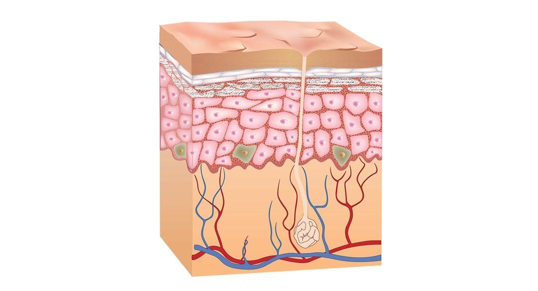 Ako fungujú detoxikačné náplasti?